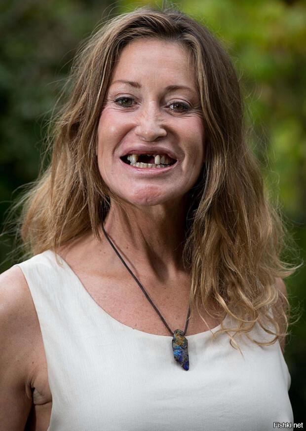 девушка улыбка без зубов фото смешные обывательское