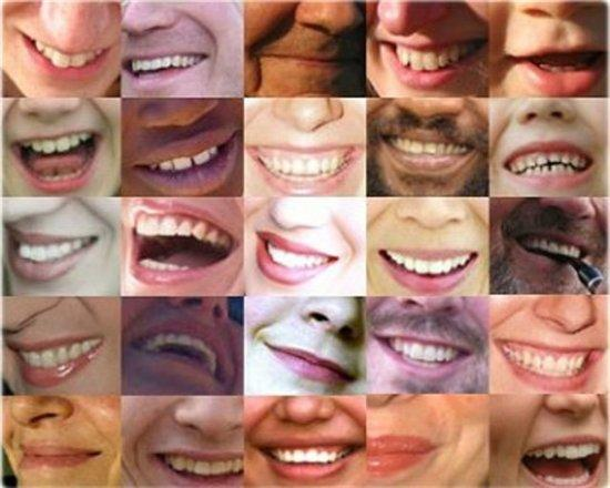 types of smiles